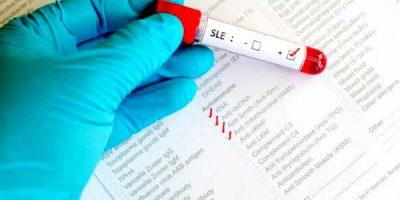 ¿Qué es lupus?